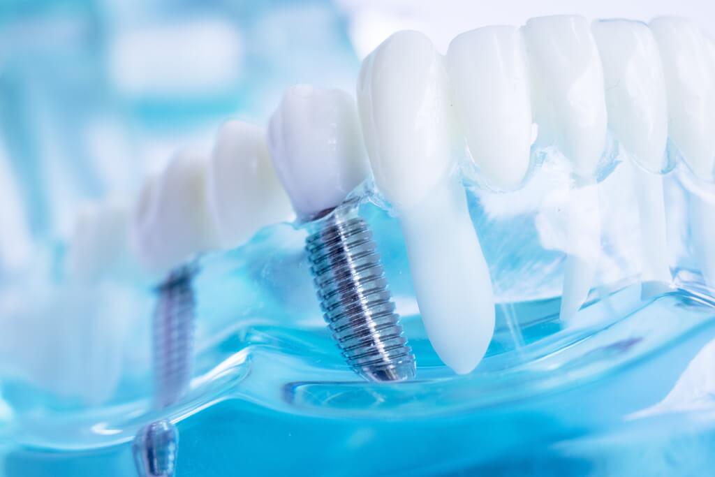 Implantate - Zahnarztpraxis Koehler & Hein
