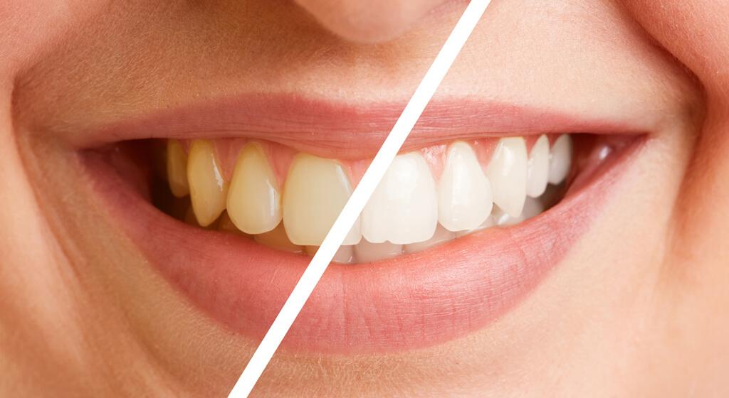 Vorsorge beim Zahnarzt Dr. Koehler in Halle / Saale